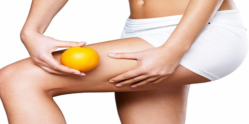 Cellulite reduction in Bangalore
