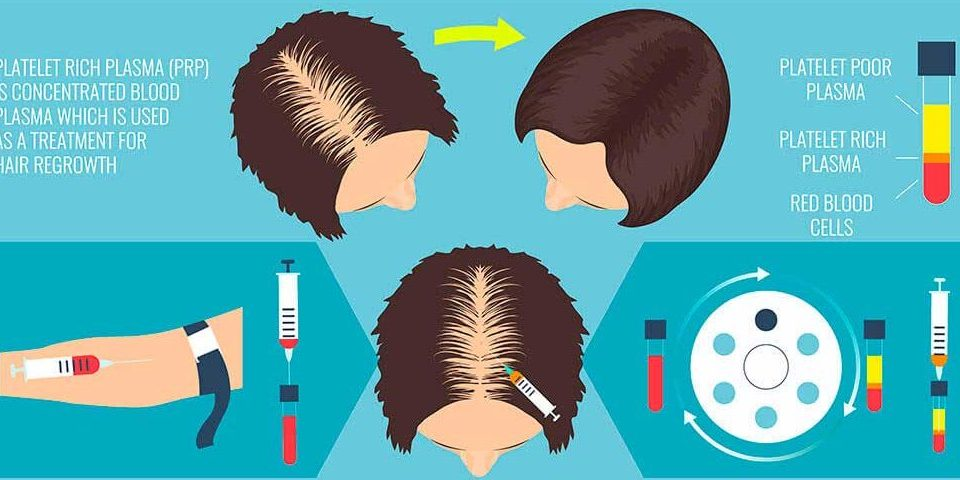 HAIR GROWTH FACTORS AND HAIR STEM CELLS hair GFT services in bangalore